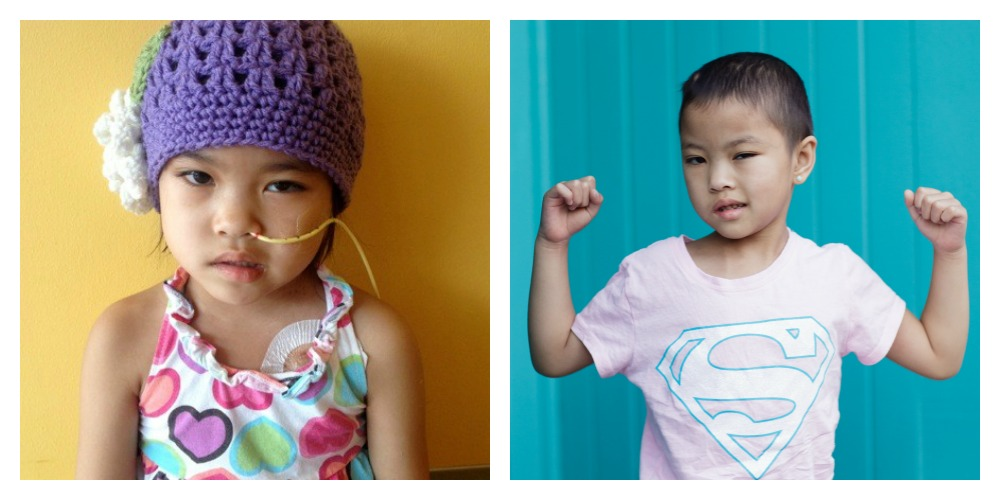 Daisy during and after treatment for medulloblastoma, a type of pediatric brain tumor