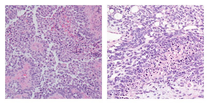 images of classic alveolar rhabdomyosarcoma and embryonal rhabdomyosarcoma