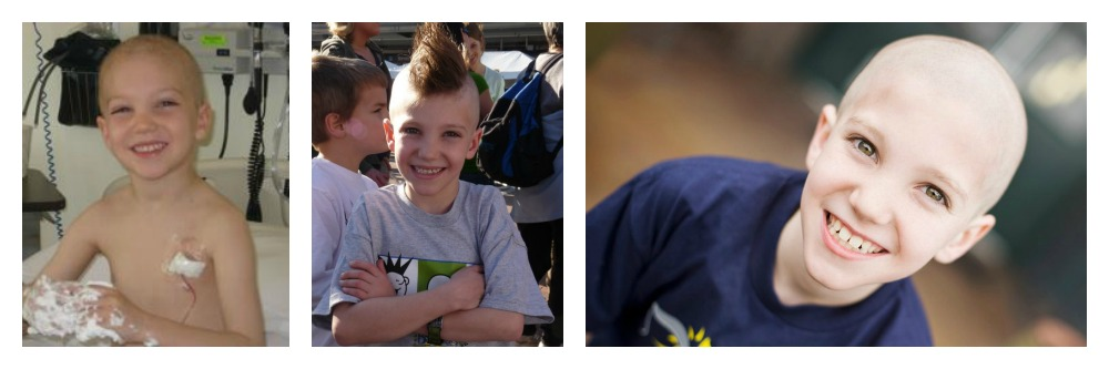 Photos of Preston Kilzer during and after treatment for childhood cancer
