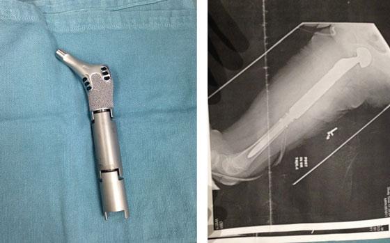 Part of Alyssa's leg implant and Alyssa's xray