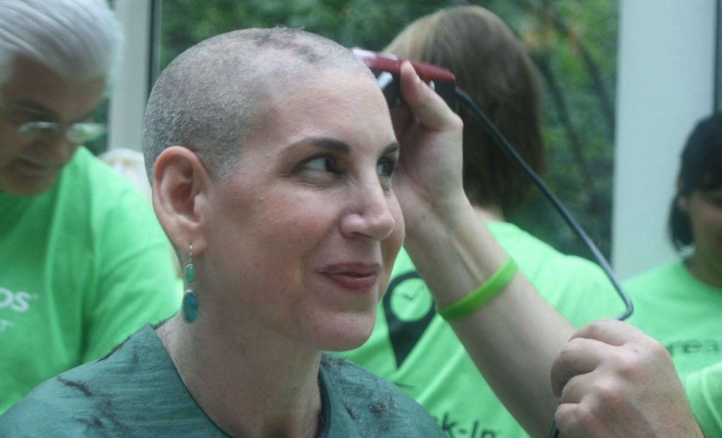 Alyson bald