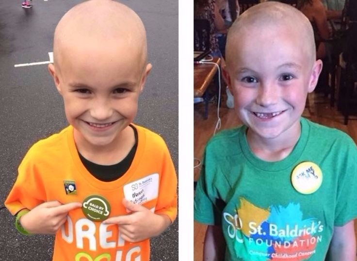 Mason during his first and second shaves for St. Baldrick's