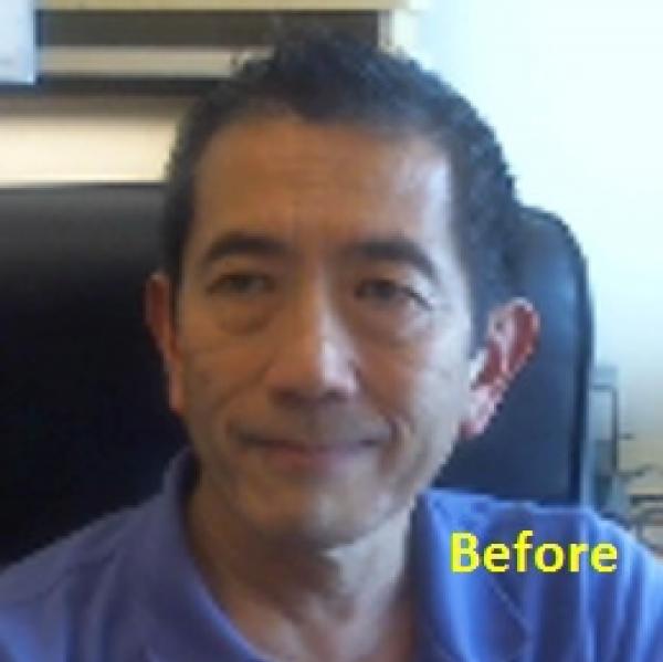 Bruce Shiramizu Before