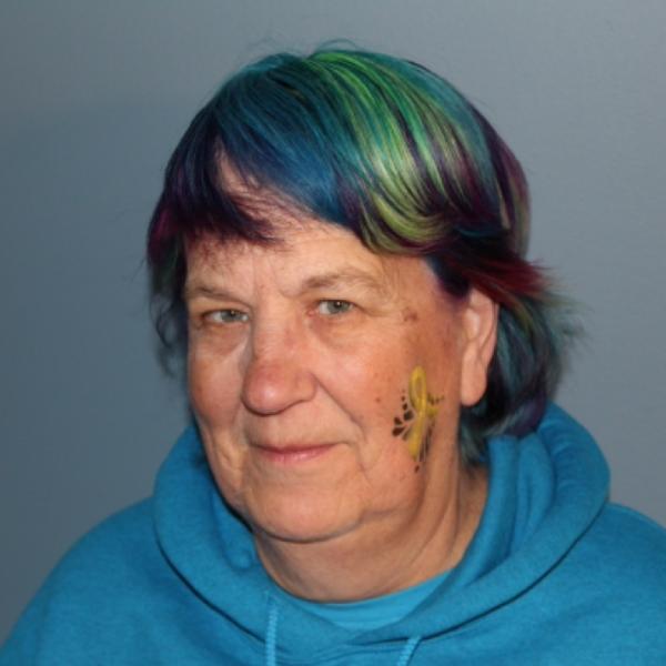 Lynne Stiefler RN Before